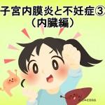 子宮内膜症と不妊症③(内臓編)
